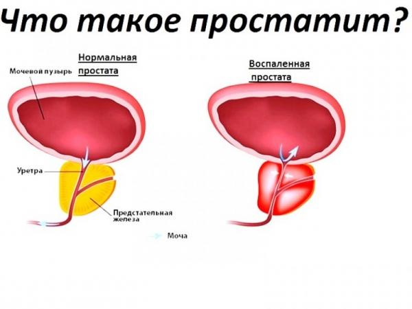 как влияет повышенный холестерин на организм