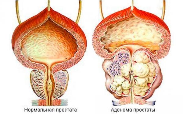 Самое эффективное лекарство от простатита у мужчин