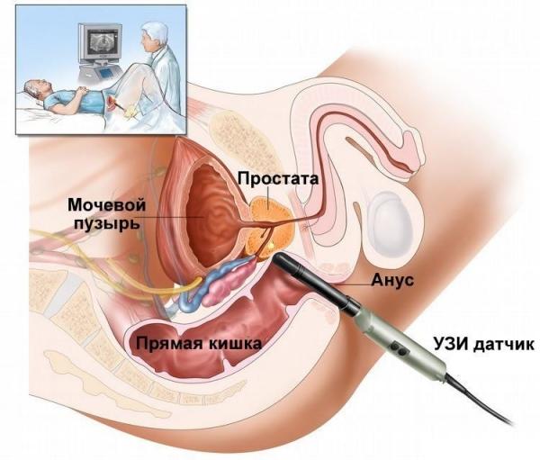 Лечение простатита ультразвуком