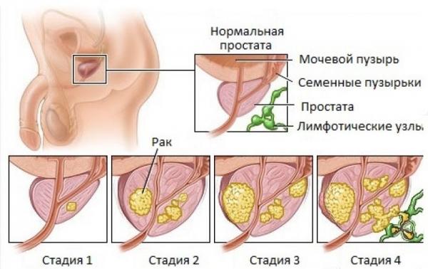 Как быстро развивается рак простаты