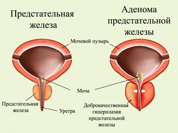 Здоровая простата и простата при аденоме