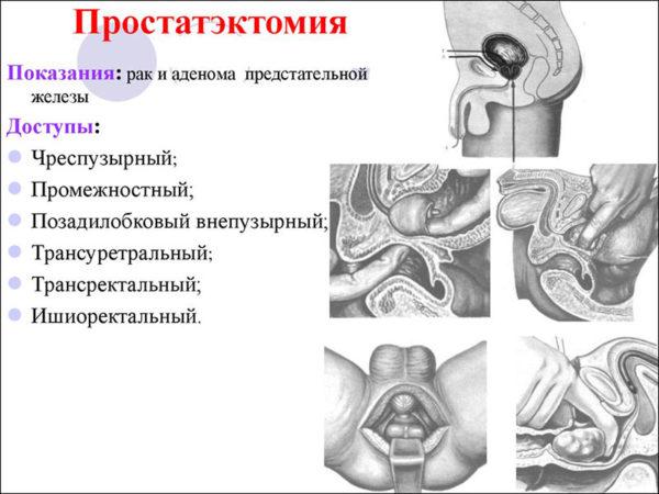 Простатэктомия и ее виды