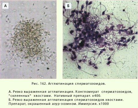 Склеивание сперматозоидов