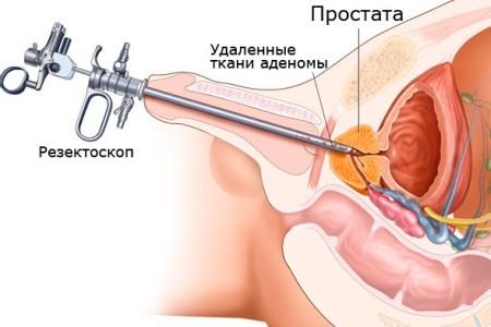 Операция ТУР