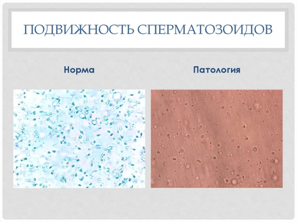 Подвижность сперматозоидов: норма и патология