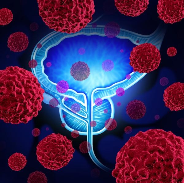 Гиперплазия предстательной железы: описание, стадии заболевания ...