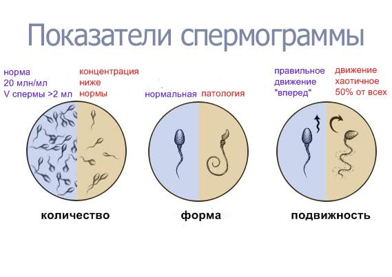 protsent-spermi-dlya-zachatii